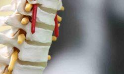 सर्वाइकल स्पोंडिलोसिस Cervical spondylosis का उपचार