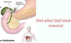 पित्ताशय हटा दिए जाने पर खान-पान Gall bladder Removed and Diet