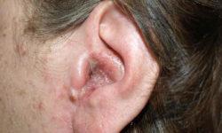 कान बहना लक्षण उपचार (Otorrhoea) in Hindi