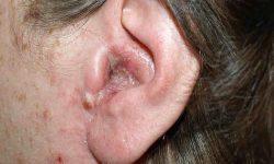ओटाइटिस एक्सटर्ना (बाहरी कान में सूजन) Otitis externa in Hindi