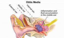 ओटाइटिस मीडिया (कान की सूजन) Otitis media in Hindi