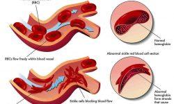 सिकल सेल रोग और एनीमिया Sickle Cell Anemea