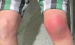 बर्साइटिस : लक्षण, कारण और उपचार | Bursitis