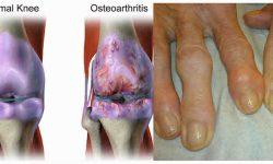 ऑस्टियोआर्थराइटिस : लक्षण, कारण और उपचार | Osteoarthritis