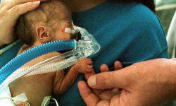 प्रीटर्म लेबर, Premature डिलीवरी और समय से पहले जन्म