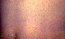 रूबेला Rubella – German measles in Hindi