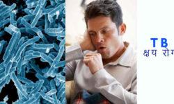 टीबी के प्रकार – टीबी के लक्षण Tuberculosis in hindi