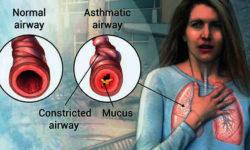 अस्थमा Asthma : कारण, लक्षण और ट्रीटमेंट