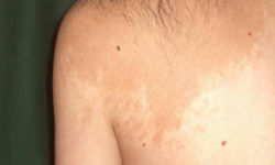त्वचा का असामान्य रंग: कारण, लक्षण और उपचार