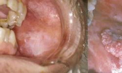 मुंह में सफेद दाग (ल्यूकोप्लेकिया) : कारण, लक्षण और इलाज