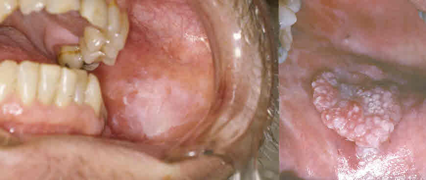 ल्यूकोप्लेकिया का इलाज