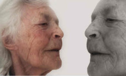 अल्जाइमर रोग : कारण, लक्षण और उपचार | Alzheimer's Disease