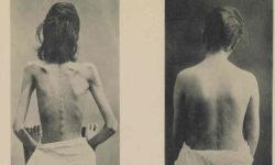 एनोरेक्सिया नर्वोसा (Anorexia nervosa) : लक्षण, कारण और उपचार