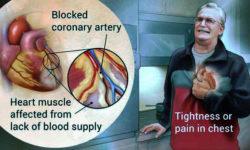 दिल का दौरा (हार्ट अटैक) : कारण, लक्षण, उपचार और बचने के उपाय