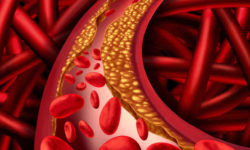 कोलेस्ट्रॉल : उच्च, कारण, लक्षण, उपचार और नियंत्रण
