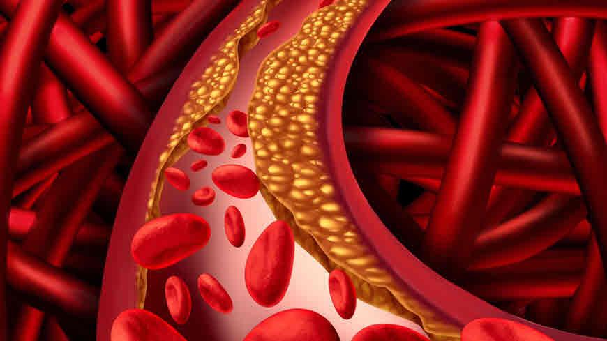 कोलेस्ट्रॉल बढ़ने के लक्षण