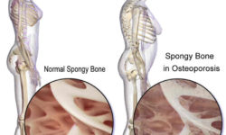 ऑस्टियोपोरोसिस : कारण, लक्षण और उपचार | Osteoporosis
