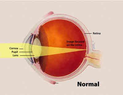 सामान्य आँख की संरचना