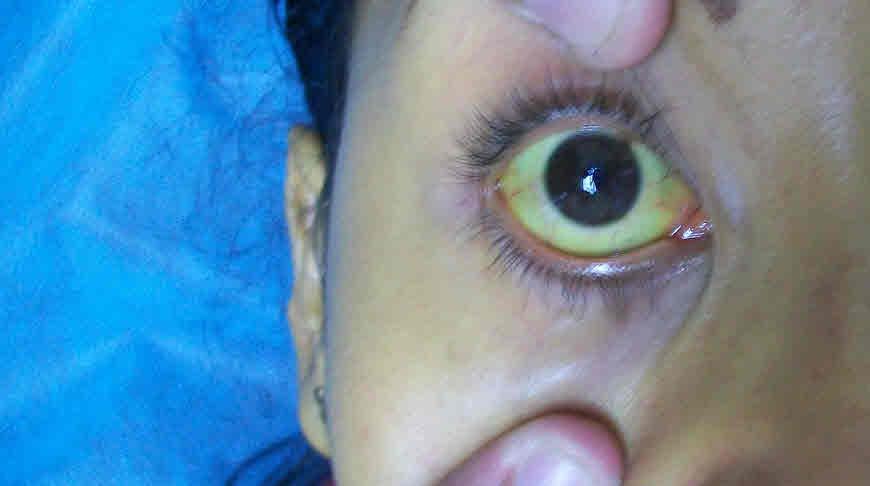 आँखों का पीला रंग