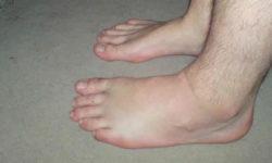 पांव (पैर)में सूजन के कारण और उपचार