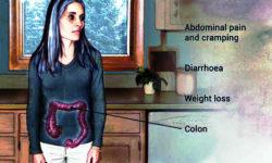 अल्सरेटिव कोलाइटिस (बड़ी आँत की सूजन)क्या है?