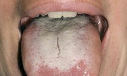 जीभ पर मोटी सफेद परत | White tonguein Hindi