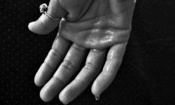 अत्यधिक पसीना का कारण और उपचार