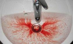 खून की उल्टी कब होती है और इसके उपाय