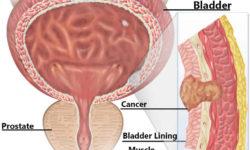 मूत्राशय कैंसर किसको होता है और उसका उपचार