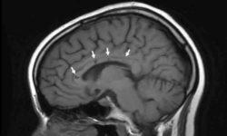दिमाग का घाव: लक्षण और उपचार