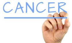 कैंसर क्या है, यह कैसे होता है और इसका इलाज क्या है?