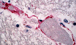 निफा वायरस | निपा वायरस (एनआईवी) संक्रमण What is Nipah Virus? Symptoms, Prevention & Cure