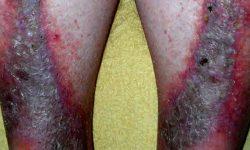 स्टेसिस डार्माटाइटिस (gravitational eczema) क्या है?