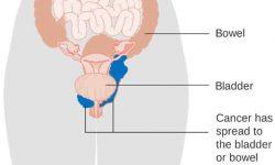 योनि कैंसरका लक्षण, कारण और उपचार
